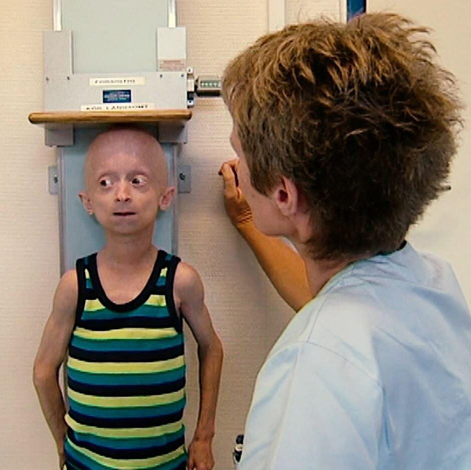 Jesper blev jævnligt målt for at holde øje med hans fremskridt. Efter nogle måneder med medicinen var han vokset, så han var 110,7 centimeter.